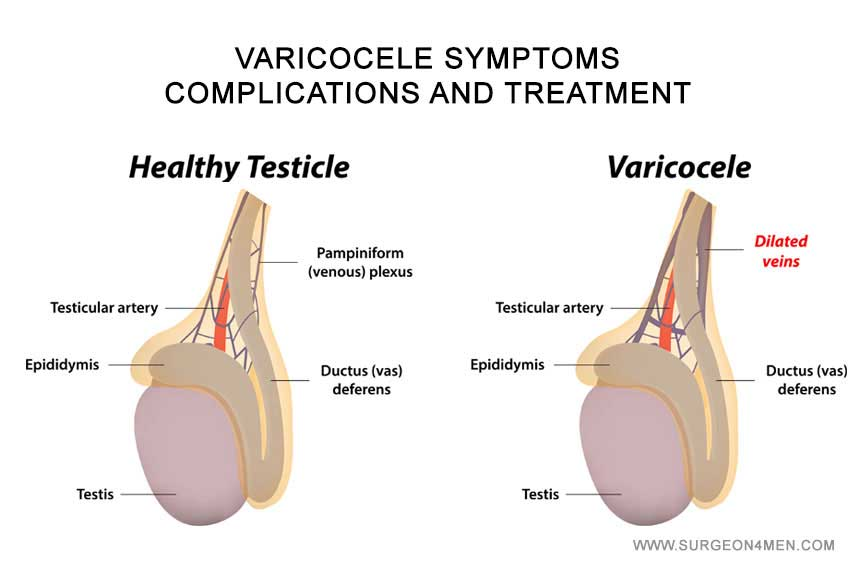 diagnostico-varicocele-instituto-europeo-de-fertilidad.jpg