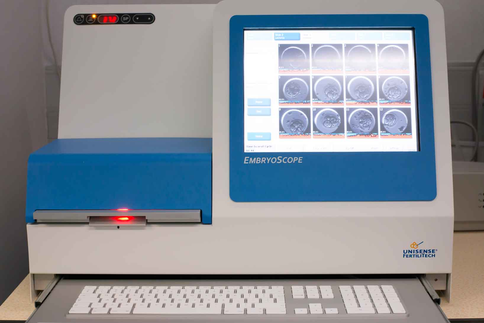 embryoscope-instituto-europeo-de-fertilidad.jpg