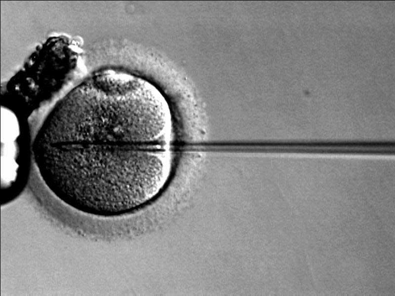 instituto-europeo-de-fertilidad-icsi-reproduccion-asistida.jpg